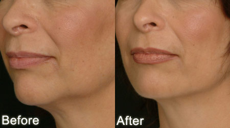 Before and After Jaw augmentation
