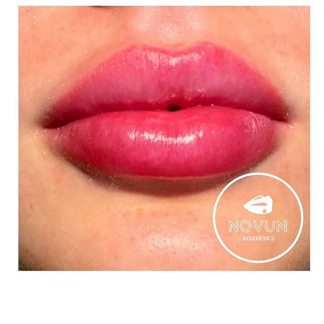 lips brentwood